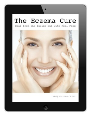 Eczema Cure eBook by Holistic Squid