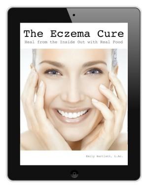 Eczema Cure eBook by Holistic Squid