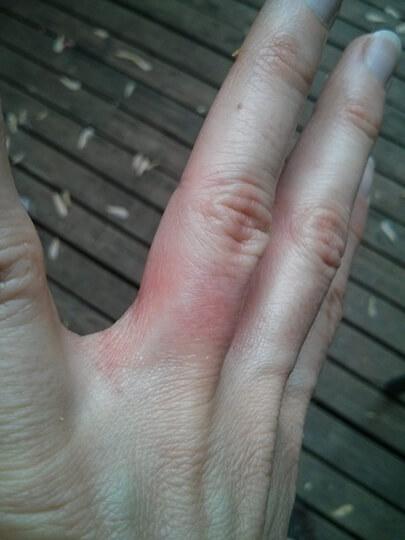 Am I allergic to my wedding ring?
