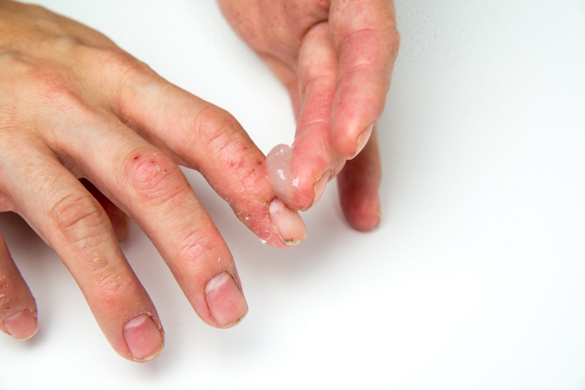 eczema relief steroids