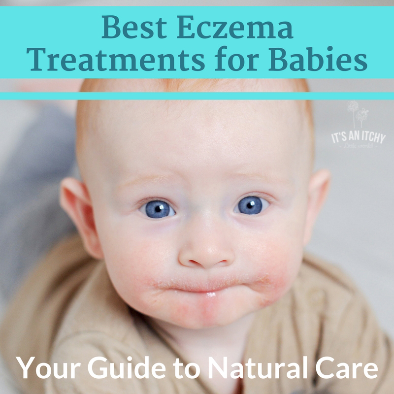 Best Eczema Treatments - main