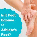 foot eczema - main