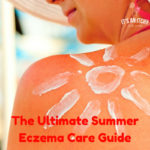 Summer eczema, learn all about the best tips for summer care and to prevent flares in warm weather.