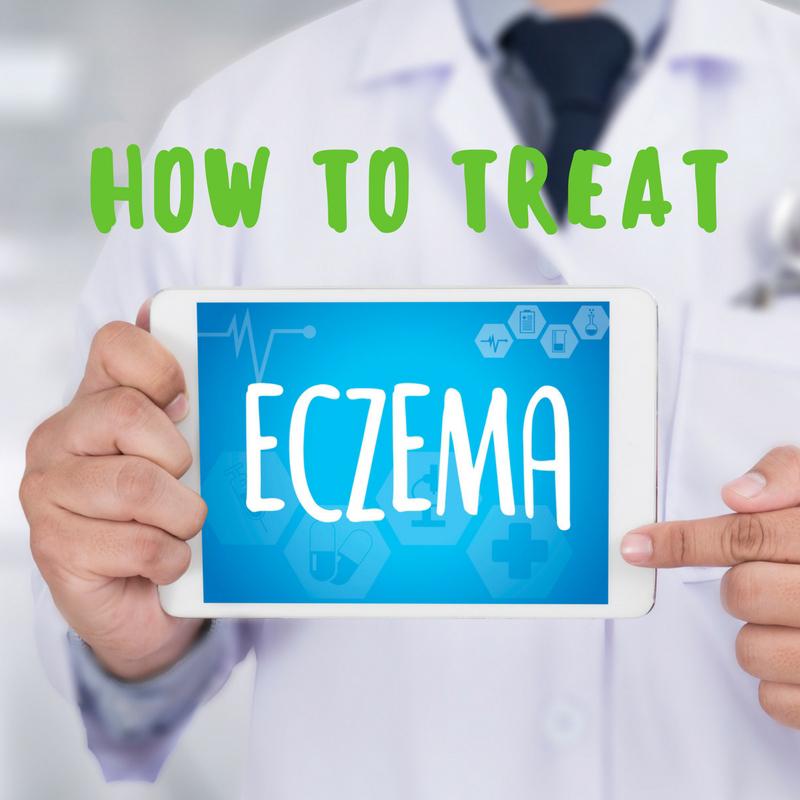 How to Treat Eczema