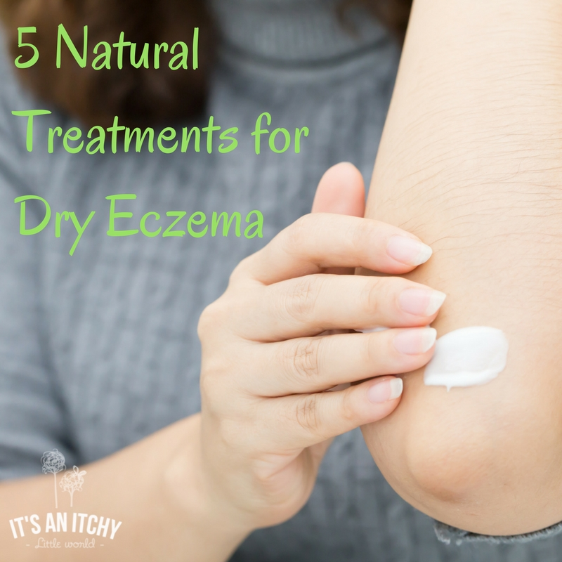 natural treatments for dry eczema