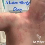 A Latex Allergy Story_mini