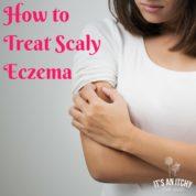 scaly eczema