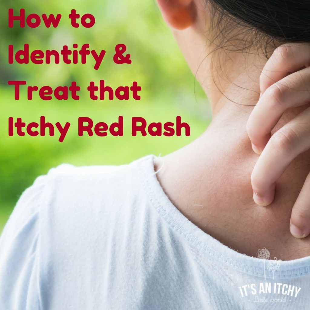 Itchy Red Rash