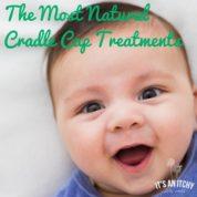 Natural Cradle Cap Treatments