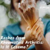 Rashes from Rheumatoid Arthritis: Is It Eczema?