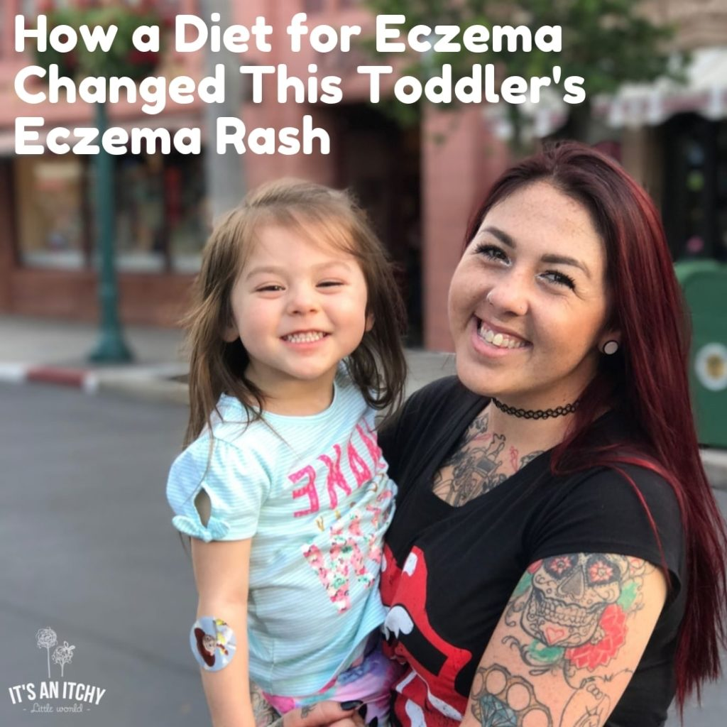 diet for eczema, toddler eczema rash-min