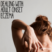 adult onset eczema