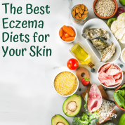 Diets for Eczema