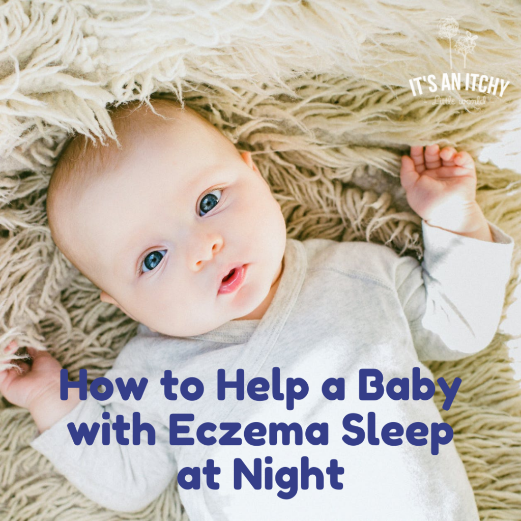 baby in white onesie - baby eczema itching at night