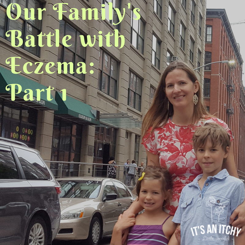 Our Family's Battle with Eczema