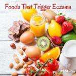 Foods That Trigger Eczema