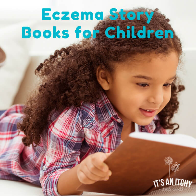 eczema stories