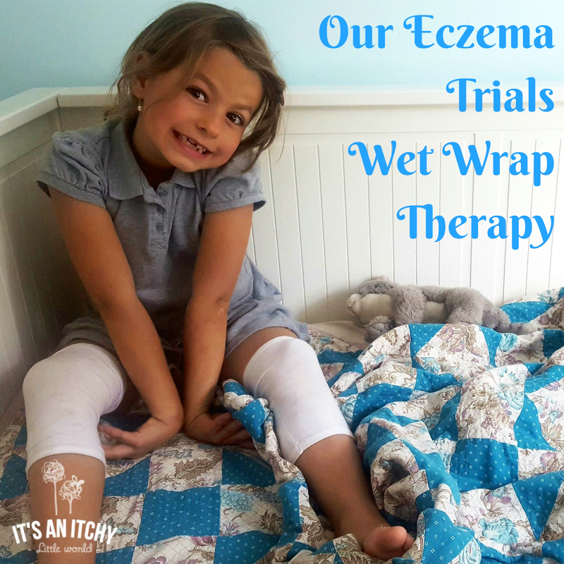 Our Eczema Trials Wet Wrap Therapy