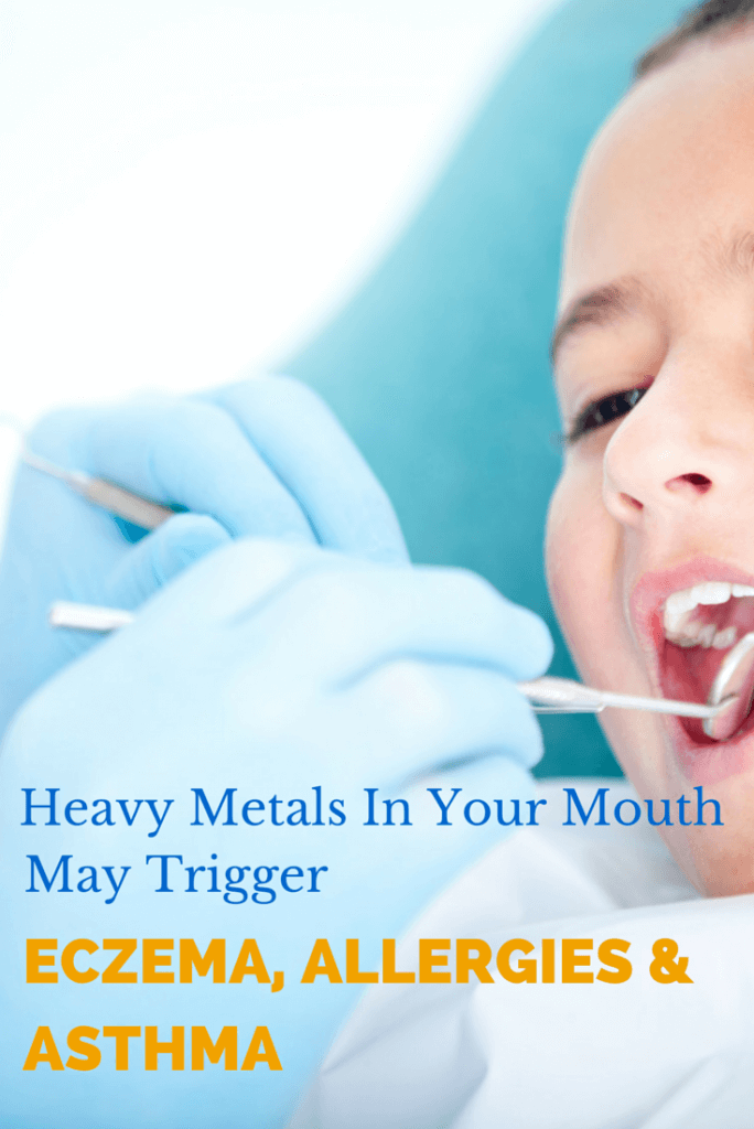 How heavy metals in mouth trigger allergies asthma eczema