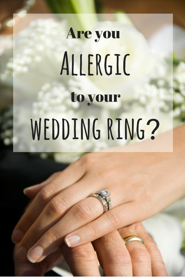 you may be allergic to your wedding ringand allergic to nickel - Wedding Ring Rash