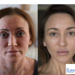 Natural Eczema Treatments - From Itchy to Inspired
