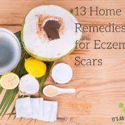 eczema scars