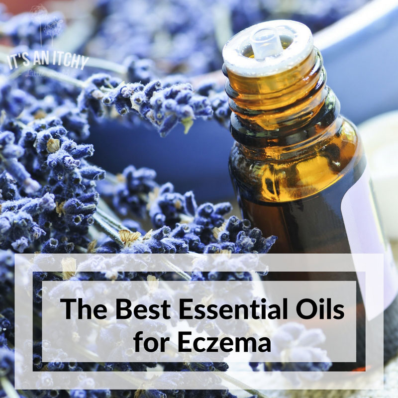 The Buzz on Best Essential Oils