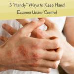 Hand Eczema - Main