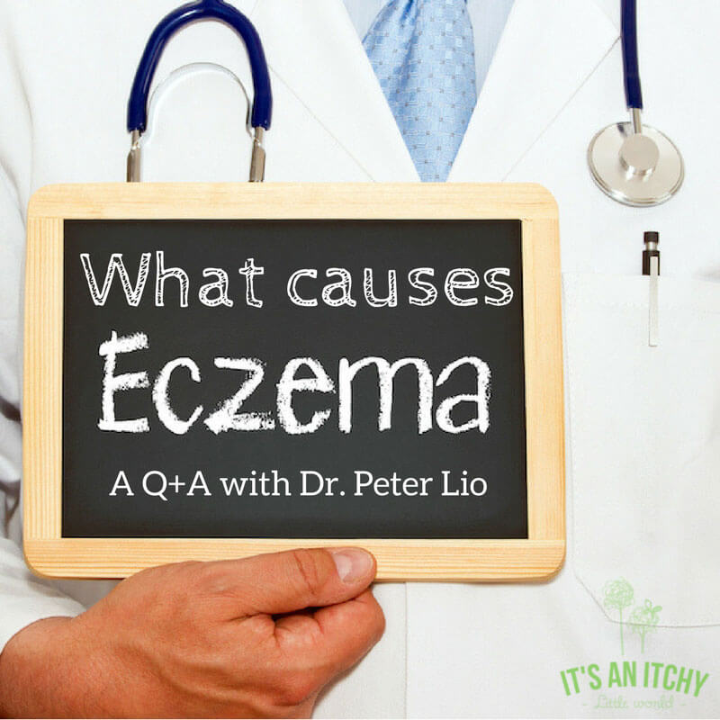 what causes eczema - doctor with chalkbaord main