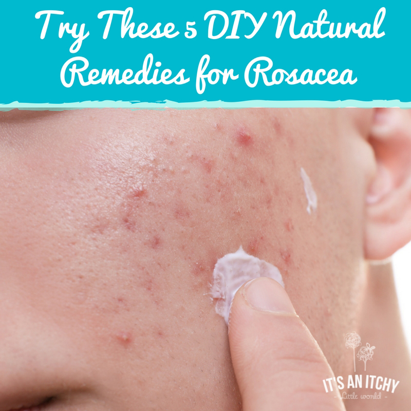 DIY Natural Remedies for Rosacea