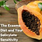 Eczema Diet