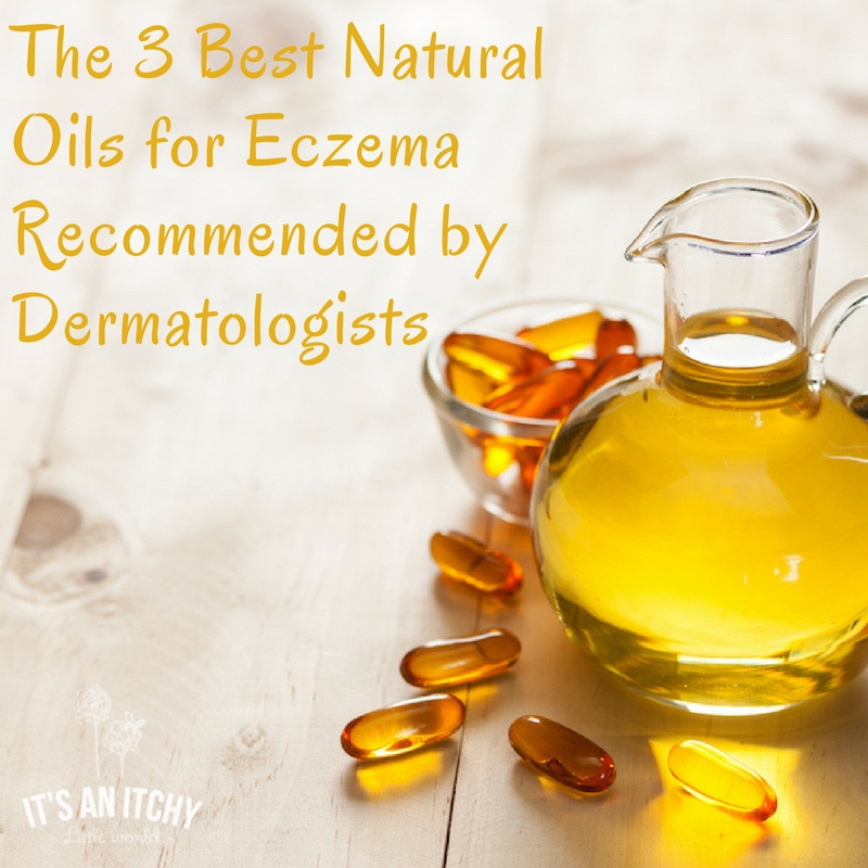 natural oils for eczema (1)