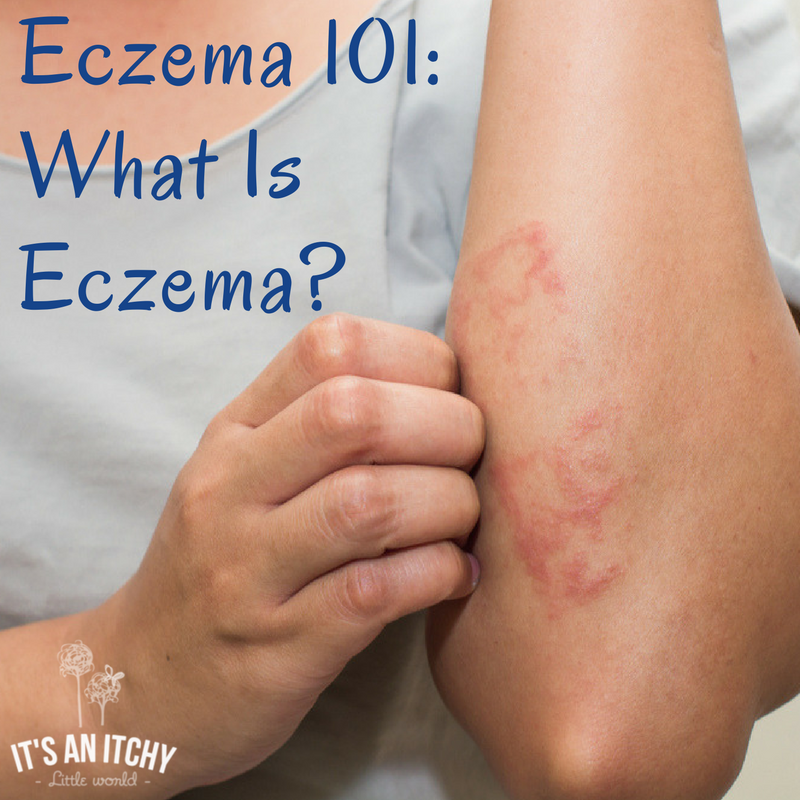 what is eczema Define eczema: an inflammatory condition of the skin characterized by redness, itching, and oozing vesicular lesions which become scaly, crusted, or.