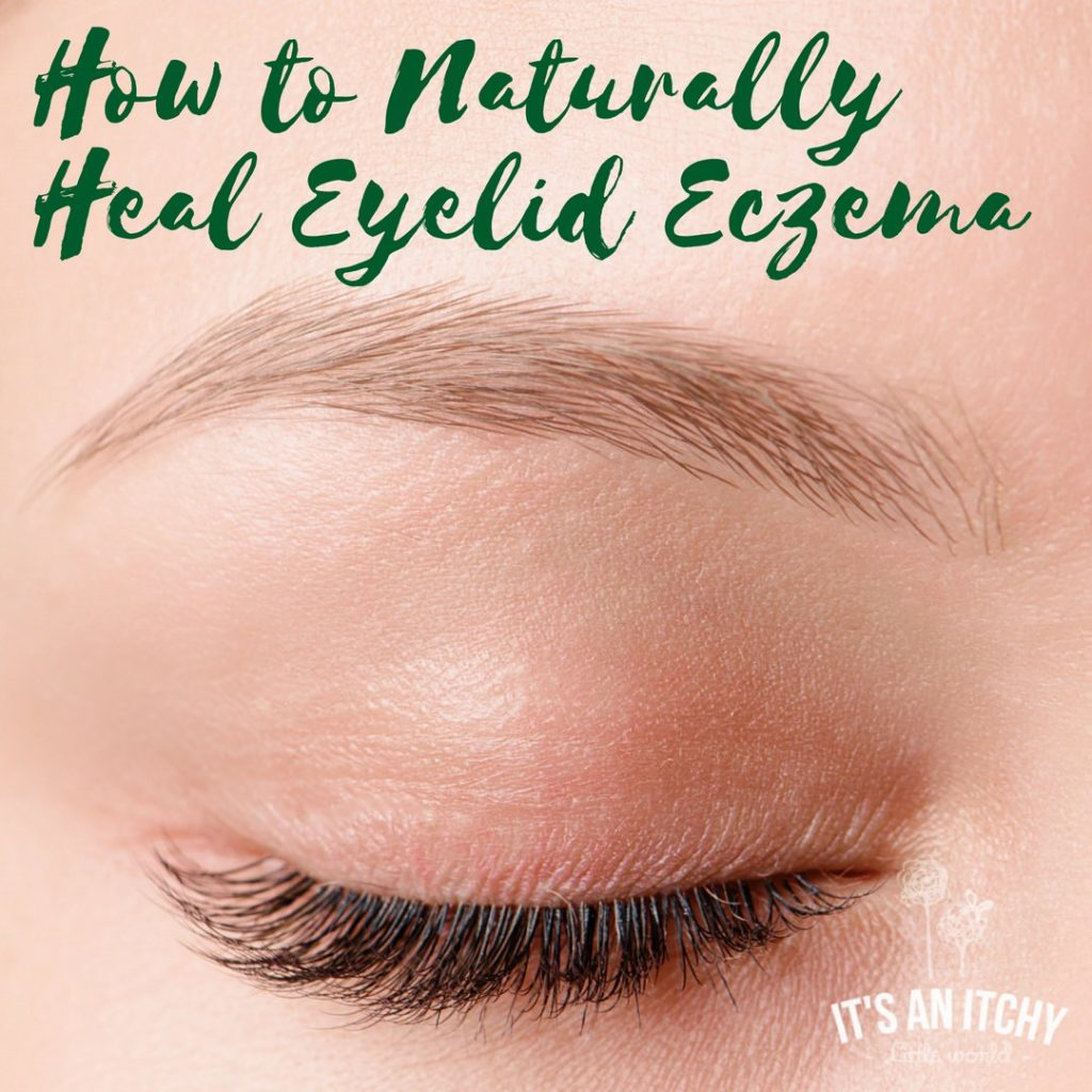How to Naturally Heal Eyelid Eczema | It's an Itchy Little World