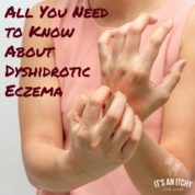 What is Dyshidrotic Eczema_mini