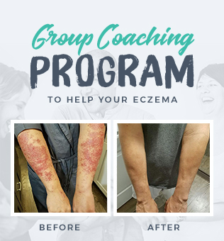 Conqueror Eczema Academy