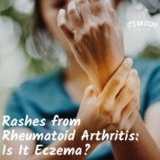 Rashes from Rheumatoid Arthritis: Is It Eczema?