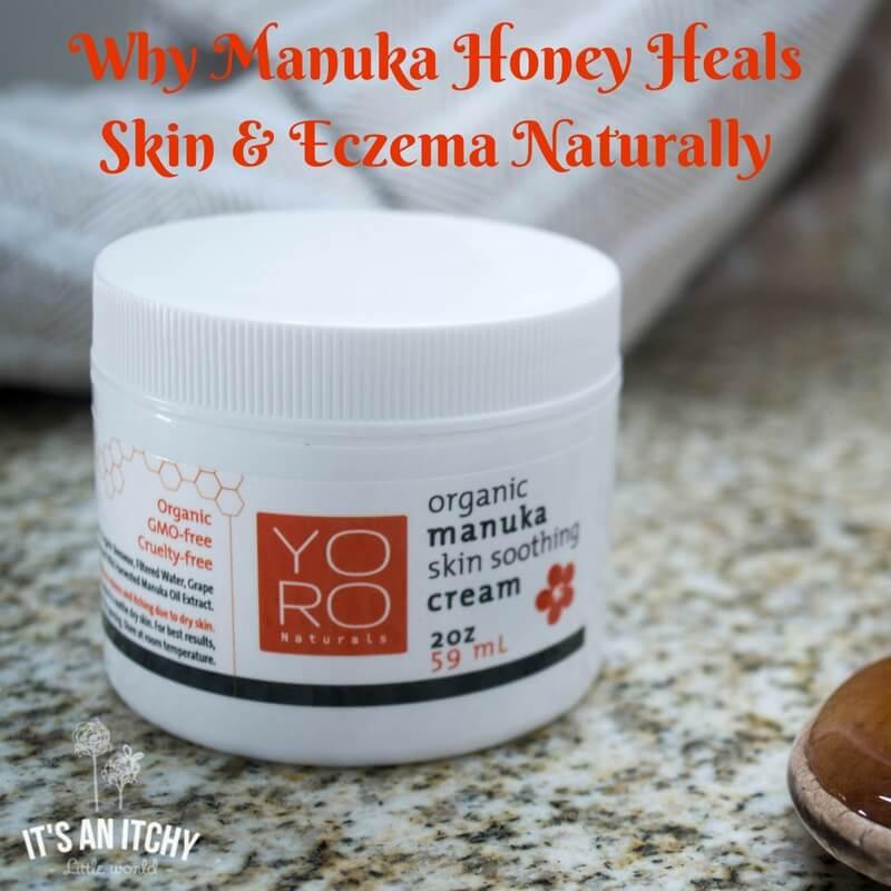 Why Manuka Honey Heals Skin & Eczema Naturally