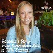 Eczematous Skin to TSW Eczema-min
