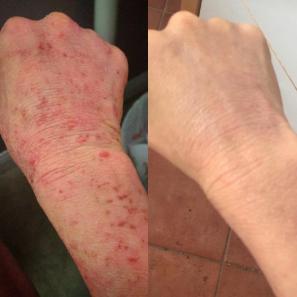 Abby Lai Raw Food Eczema Diet 1