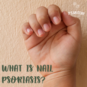 What is nail psoriasis