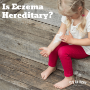 Is Eczema Hereditary