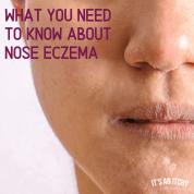 Nose Eczema