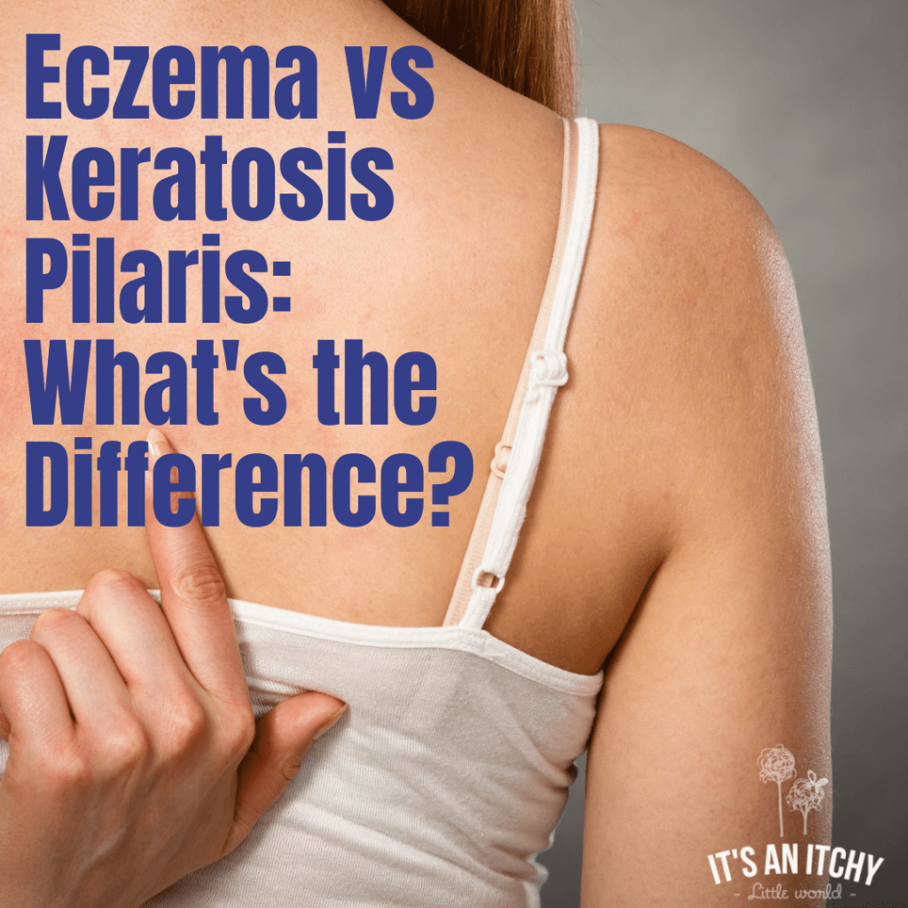 Women scratching back - Eczema vs Keratosis Pilaris