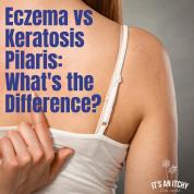 Women scratching back - Eczema vs Keratosis Pilaris